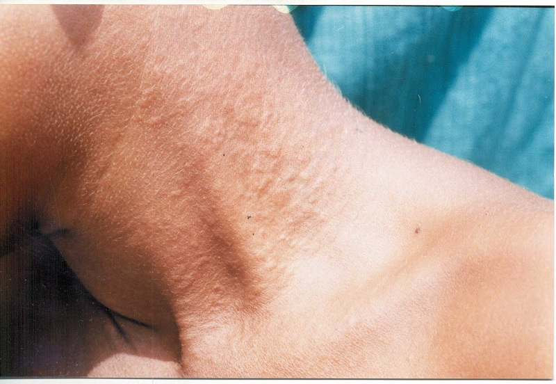 Some common and risky diseases of the skin