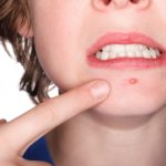 How to get rid of acne with some simple home remedies