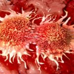 How to prevent cancer disease with 10 easy strategies