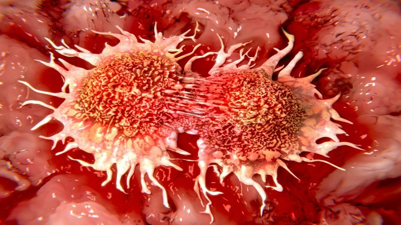 Prevent cancer disease with 10 easy strategies