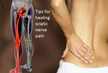 Tips for healing sciatic nerve pain