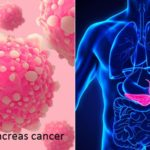 Prevent pancreas cancer with some easy methods