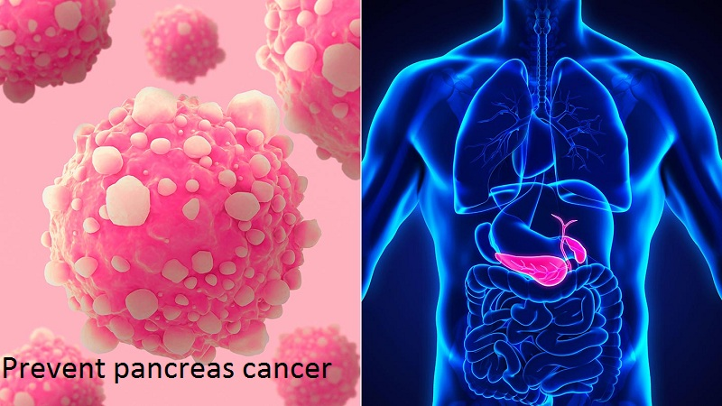 Prevent pancreas cancer