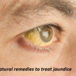 9 Known natural remedies to treat jaundice