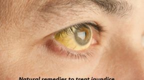 Natural remedies to treat jaundice