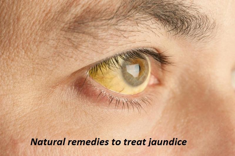 Natural remedies to treat jaundice