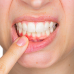 Gingival recession, good habits help prevent it!